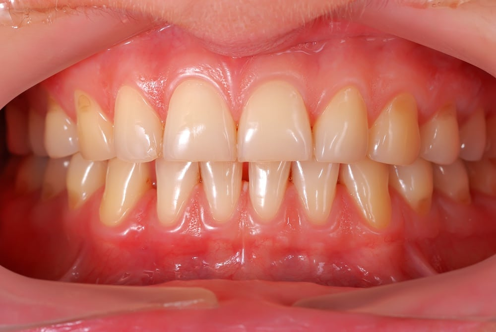 Do You Recognize the Signs of Gum Disease? | Ankeny, IA