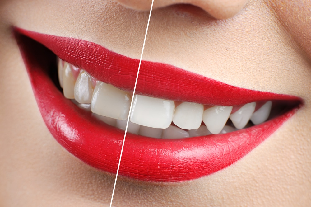 how to make your teeth look whiter in pictures